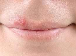 Герпес на губах: лечение в домашних условиях